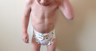 صوره علاج نحافة الاطفال , طرق علاج نحافه الاطفال