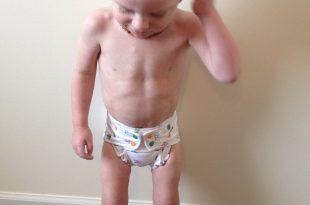 صورة علاج نحافة الاطفال , طرق علاج نحافه الاطفال