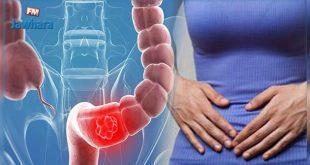 اعراض سرطان القولون , سلطان القولون اعراضه علاجه الوقاية منه