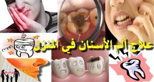 تسكين الم الاسنان , تعرف على كيفية علاج الم الاسنان