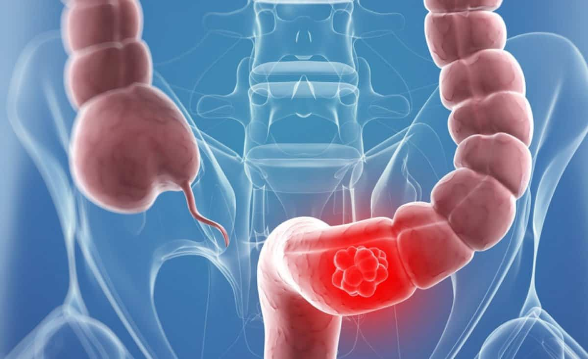 صور اعراض التهاب القولون , شاهد بالفيديو اعراض واسباب التهاب القولون
