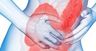 صوره اعراض التهاب القولون , شاهد بالفيديو اعراض واسباب التهاب القولون