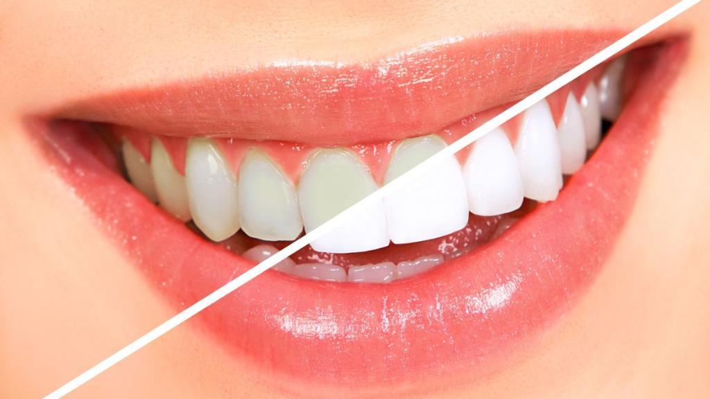 بالصور كيفية تبييض الاسنان , شاهد بالفيديو ازالة رواسب الاسنان 2067 1