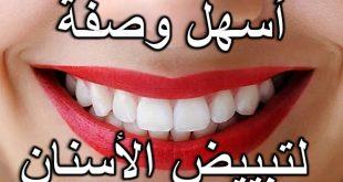 صوره كيفية تبييض الاسنان , شاهد بالفيديو ازالة رواسب الاسنان