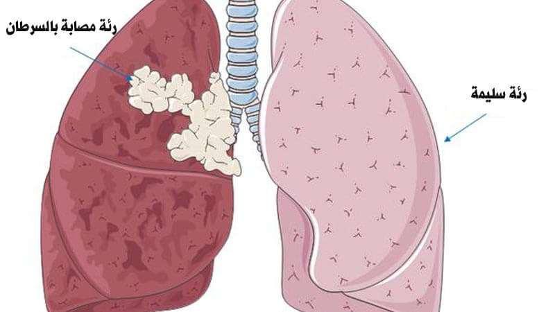 بالصور اعراض سرطان الرئة , ماهى اعراض سرطان الرئه 392 1
