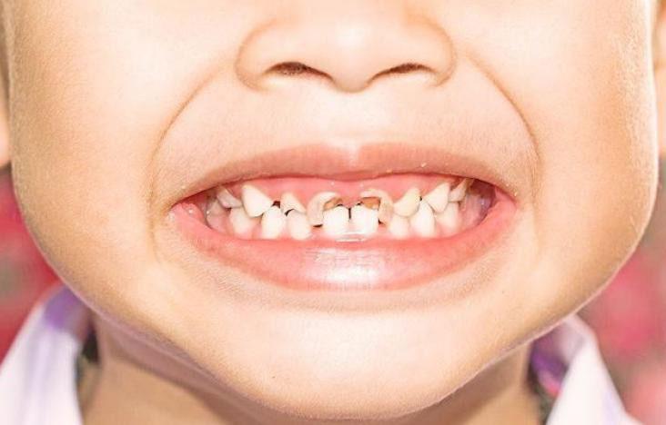 بالصور علاج تسوس الاسنان , احسن علاج لتسوس الاسنان 85 2