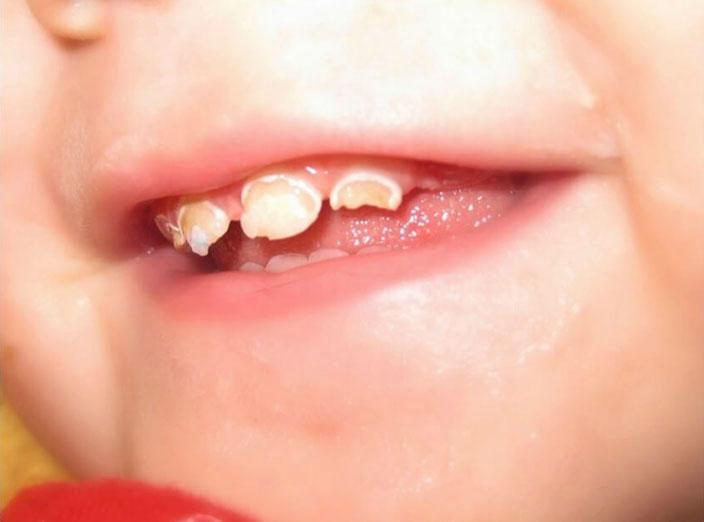 بالصور علاج تسوس الاسنان , احسن علاج لتسوس الاسنان 85 3
