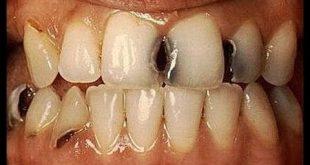 علاج تسوس الاسنان , احسن علاج لتسوس الاسنان