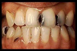 صورة علاج تسوس الاسنان , احسن علاج لتسوس الاسنان