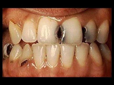 صوره علاج تسوس الاسنان , احسن علاج لتسوس الاسنان