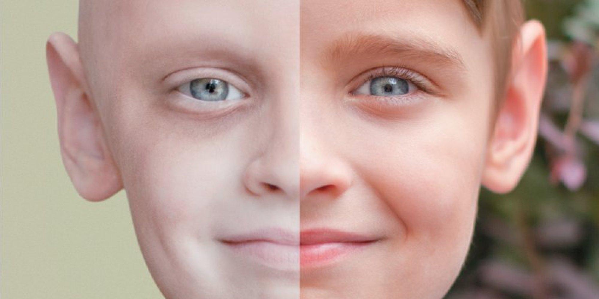بالصور اخطر انواع السرطان , ماهو اخطر انواع السرطان 93 3