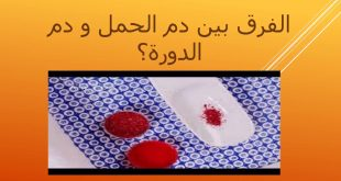 الفرق بين دم الدورة ودم الحمل , والله من هالاعراض تقدروا تفرقون بين دم الحمل والحيض