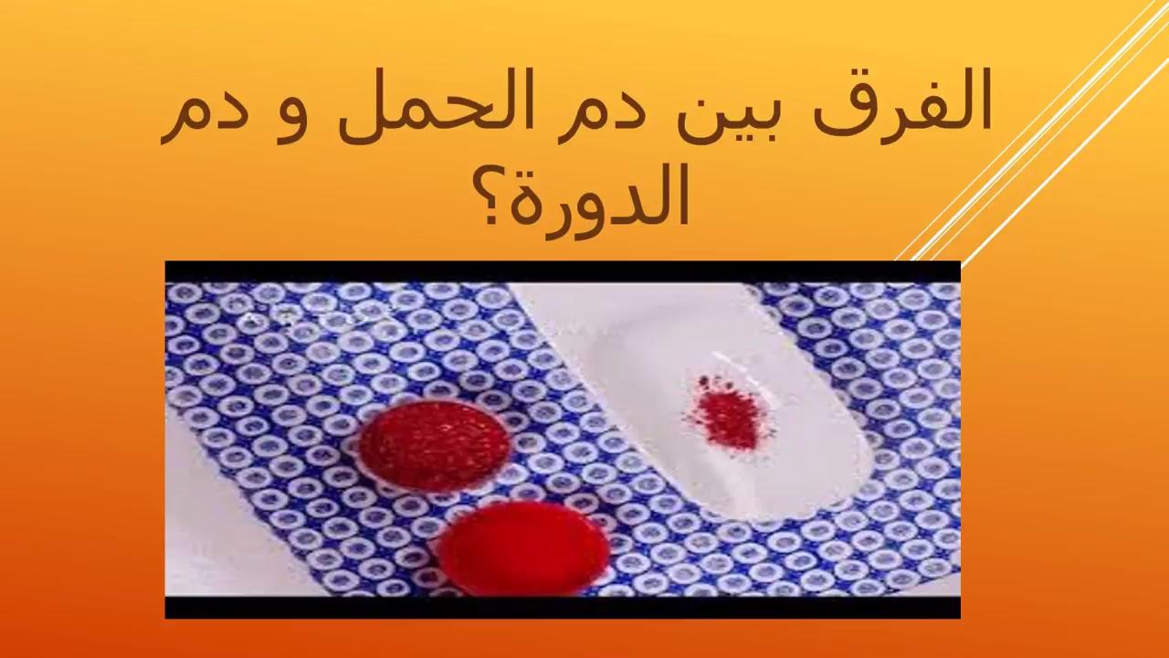 صورة الفرق بين دم الدورة ودم الحمل , والله من هالاعراض تقدروا تفرقون بين دم الحمل والحيض