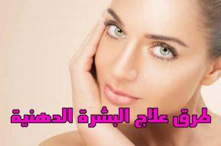 صورة علاج البشرة الدهنية , تعرف على ادوية البشرة الدهنية