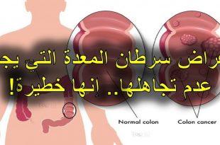 بالصور اعراض سرطان المعدة , البراز الاسود من اعراض سرطان المعدة تعرف على المزيد 1877 2 310x205
