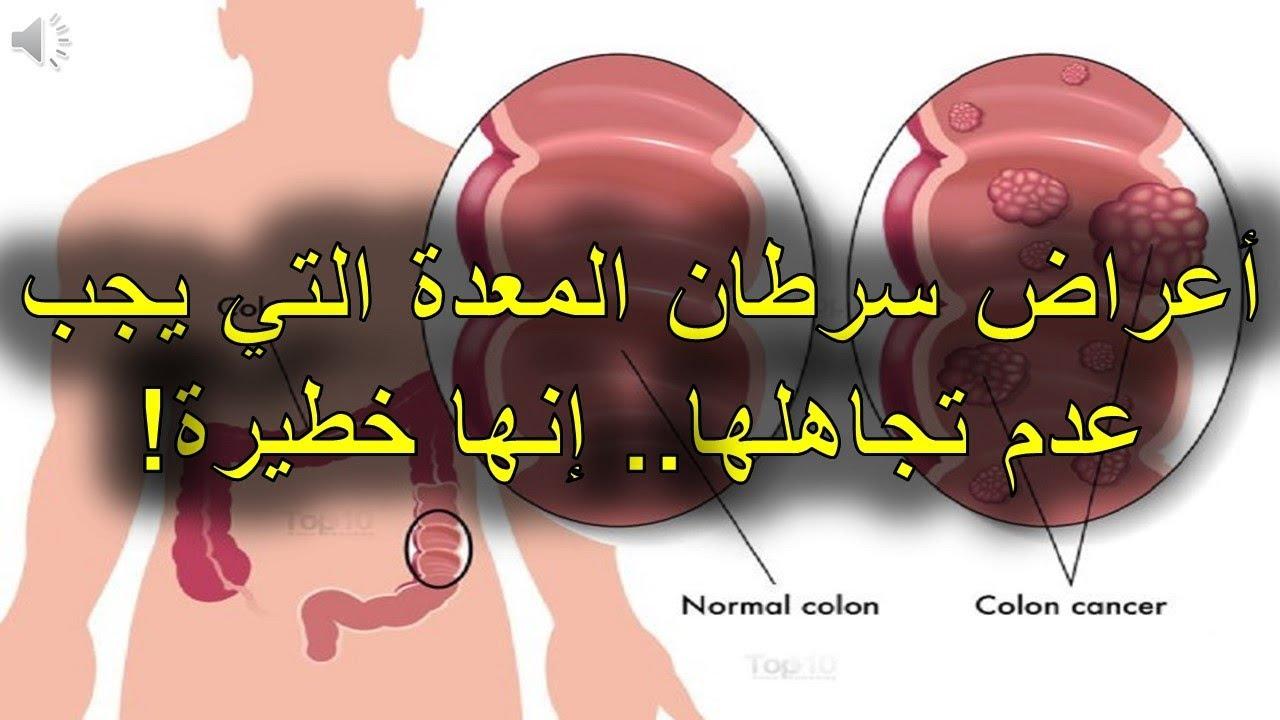 بالصور اعراض سرطان المعدة , البراز الاسود من اعراض سرطان المعدة تعرف على المزيد 1877