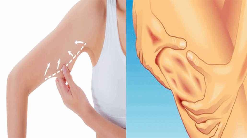صور ما هو السيلوليت , تعرف على اعراض وعلاج مرض السيلوليت