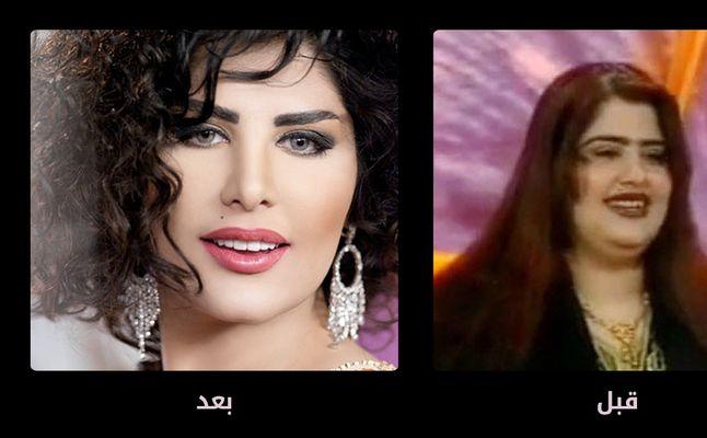 صورة صور الفنانات قبل عمليات التجميل , اثر عمليات التجميل علي الفنانات