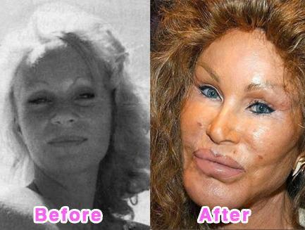 صور عملية تجميل فاشلة لممثلة كورية دمرت حياتها , معلومات عن عمليات التجميل