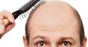 دواء لانبات الشعر , علاج سريع لتكثيف الشعر وانباته