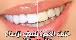 بالصور وصفات تبييض الاسنان , خلطات منزلية لاسنان روعة ولامعة 4130 1 310x165