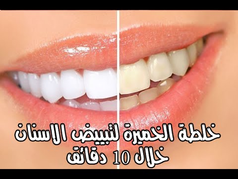 صورة وصفات تبييض الاسنان , خلطات منزلية لاسنان روعة ولامعة