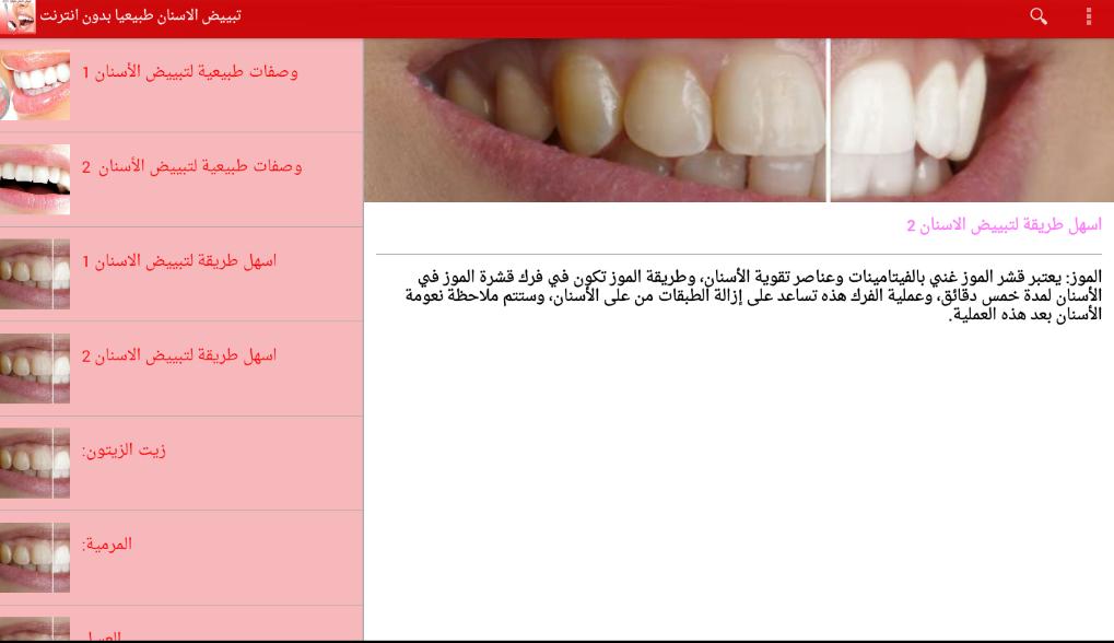 صور وصفات تبييض الاسنان , خلطات منزلية لاسنان روعة ولامعة