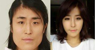 صورة التجميل في كوريا , عمليات التجميل المنتشرة في كوريا