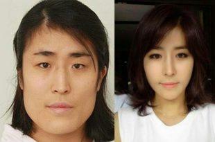 صور التجميل في كوريا , عمليات التجميل المنتشرة في كوريا