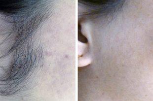 صورة الشعر في الوجه , مشكلة ظهور الشعر في الوش