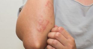 علاج لحساسية الجلد , انتهاء معاناتك من حساسية الجلد بطرق بسيطة