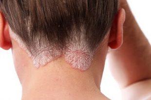 صور علاج تينيا الفخذين و التصبغ في المنطقة الاربية , حلول هامة لمرض التينيا الموجود بين الفخدين