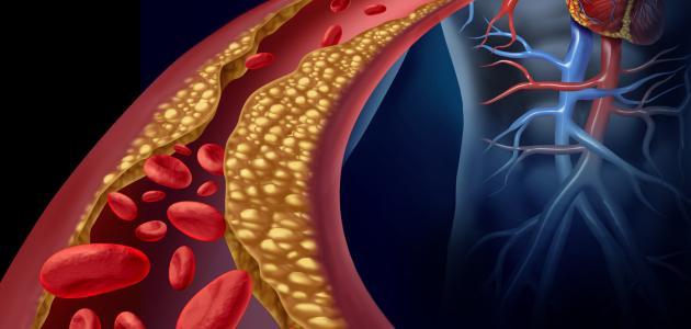 صور اعراض مرض الكولسترول , حاجات تعرفي منها ان الكولسترول عالي