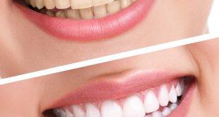 طريقة التخلص من جير الاسنان , وصفات سهلة ورهيبة لحل مشكلة الجير المتراكم ع الاسنان