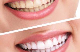 صور طريقة التخلص من جير الاسنان , وصفات سهلة ورهيبة لحل مشكلة الجير المتراكم ع الاسنان