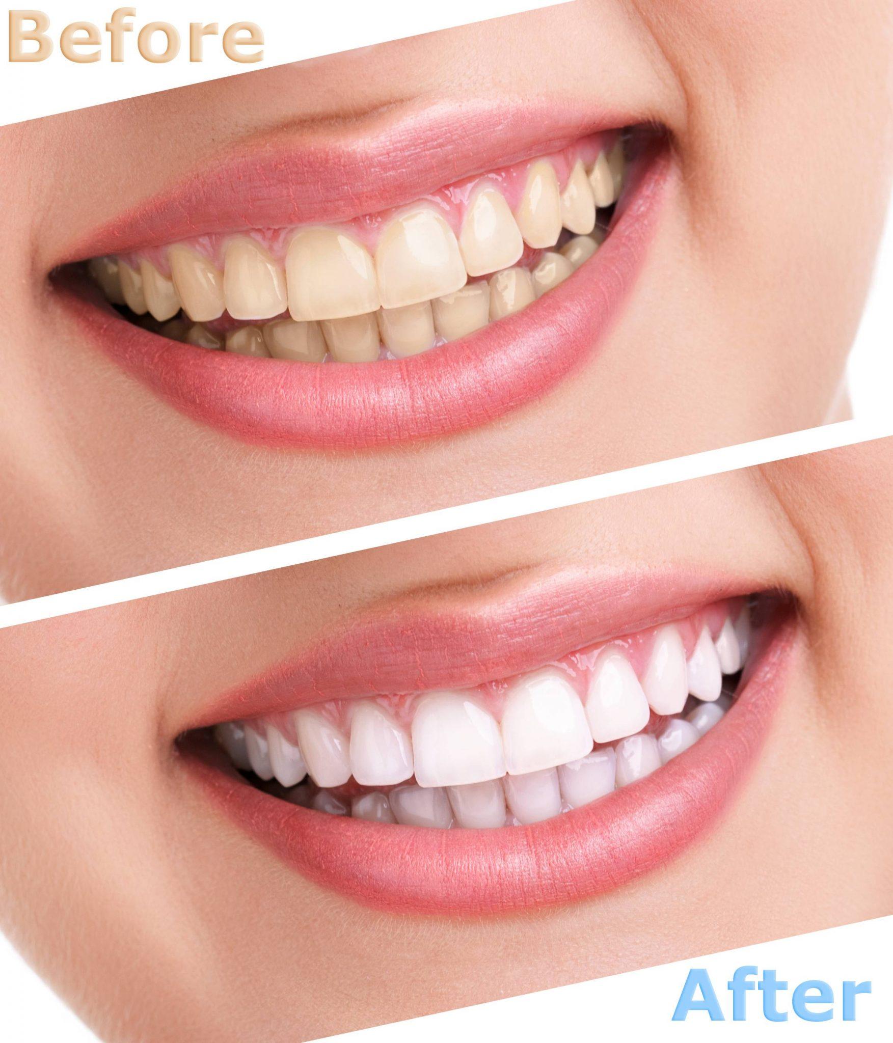 صورة طريقة التخلص من جير الاسنان , وصفات سهلة ورهيبة لحل مشكلة الجير المتراكم ع الاسنان