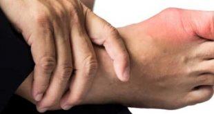 ما هو مرض النقرس , تعرفي على اعراض واسباب داء النقرس