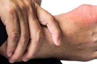 صور ما هو مرض النقرس , تعرفي على اعراض واسباب داء النقرس