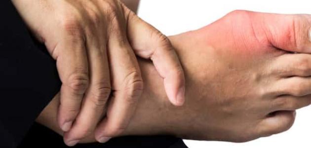 صورة ما هو مرض النقرس , تعرفي على اعراض واسباب داء النقرس