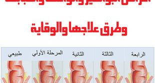 اعراض البواسير , علامات توضح اصاباتك بمرض البواسير المزعج
