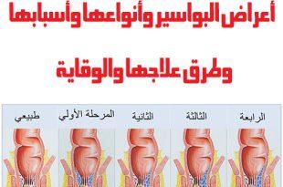 صور اعراض البواسير , علامات توضح اصاباتك بمرض البواسير المزعج