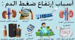 اعراض ارتفاع ضغط الدم , علامات واضحة لضغط الدم المرتفع