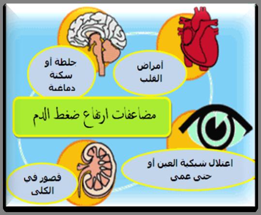 صورة اعراض ارتفاع ضغط الدم , علامات واضحة لضغط الدم المرتفع