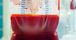 صور علاج الانيميا , حلول بسيطة لمقاومة فقر الدم