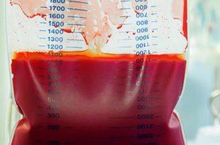 صورة علاج الانيميا , حلول بسيطة لمقاومة فقر الدم