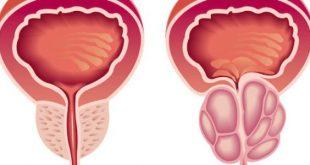 اعراض البروستاتا , ما اعراض التهاب البروستاتا