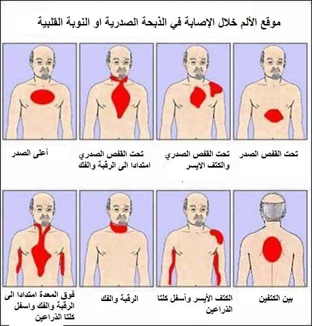صورة اعراض الذبحة الصدرية , اسباب و اعراض الذبحه