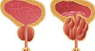 علاج البروستاتا , اسباب و انواع و علاج التهاب البروستاتا