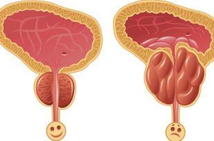 صورة علاج البروستاتا , اسباب و انواع و علاج التهاب البروستاتا