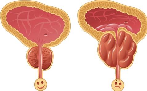 صور علاج البروستاتا , اسباب و انواع و علاج التهاب البروستاتا